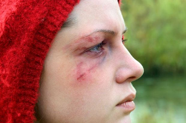 girl with bruised eye