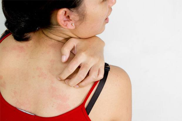 Woman with eczema on her back scratching it