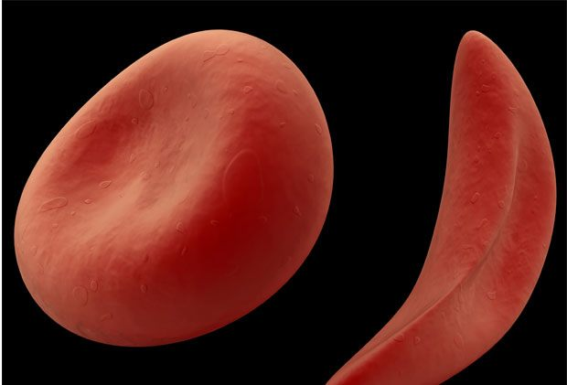 Picture of one normal blood cell and one sickle shaped blood cell