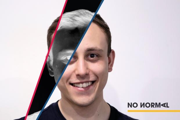 no normal jack